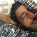 36 Suffered Pellet Injuries Since August 5: Official